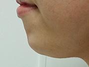 ヒアルロン酸 顎施術の施術前