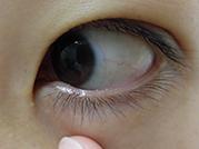 下眼瞼母斑の施術前